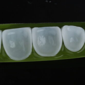 What E.MAX and Zirconia Crowns Are?
