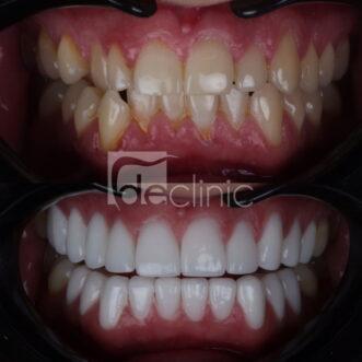 Porcelain Veneers for Crooked Teeth