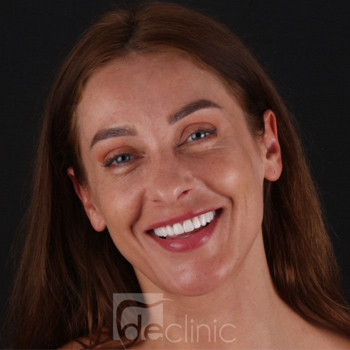 Women with refreshed teeths