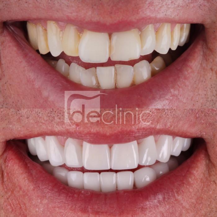 misaligned teeth porcelain veneers