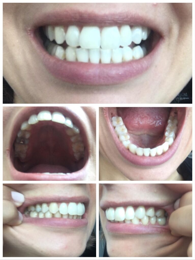 Sample photo angles for consultation